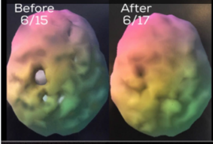 Brain-scan-image-e1551731850708
